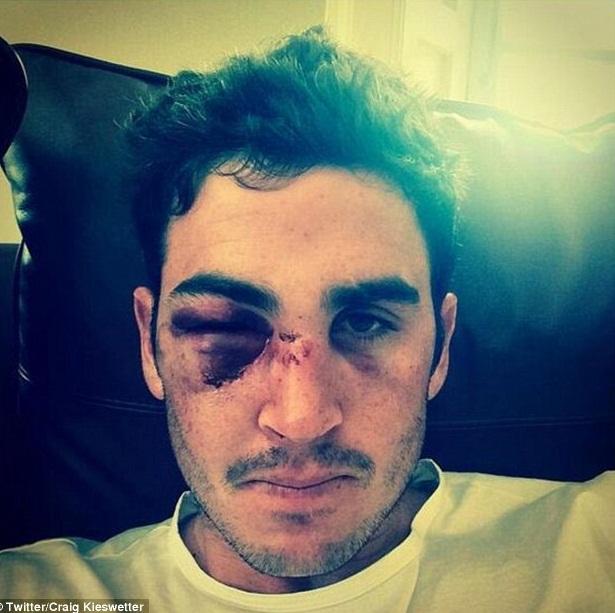 باؤنسر کی ضرب سے کیزویٹر کی ناک اور گال کی ہڈی ٹوٹ گئی جبکہ آنکھ سوج چکی ہے (تصویر: Twitter/Craig Kieswetter)
